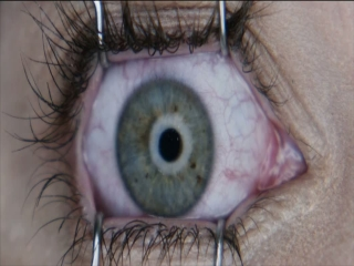 Final Destination 5 Laser Eye Surgery - Final Destination 5 - Flixster Video