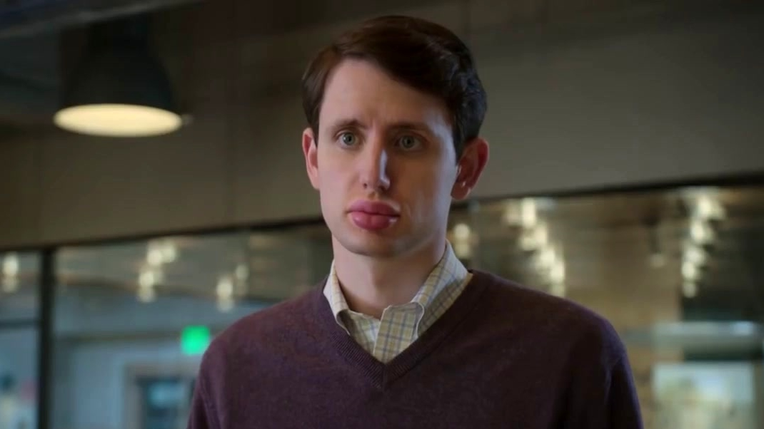 Silicon Valley: What Did You Do To Your Face