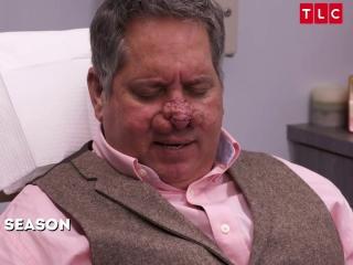 Dr Pimple Popper Tlc Dr Pimple Popper Removes Horse